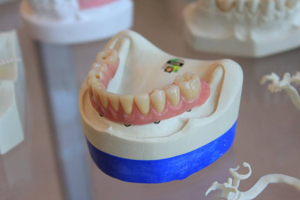implantologie-zahnimplantate-zahnaerzte-am-museum-molfsee-kiel