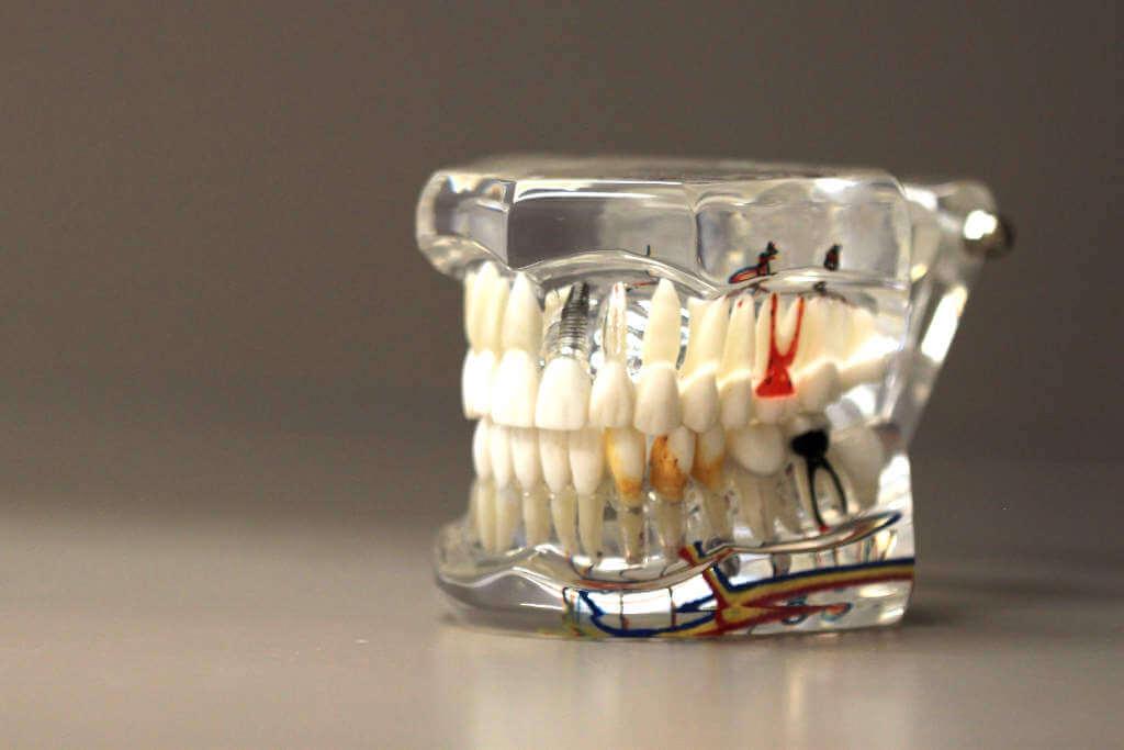 wurzelbehandlung-endodontie-zahnaerzte-am-museum-molfsee-kiel